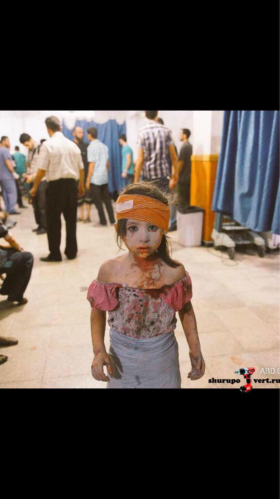 Лицо войны: Жертвы Асадовских баррельных бомб в городу Дума, провинция Дамаск, Сирия