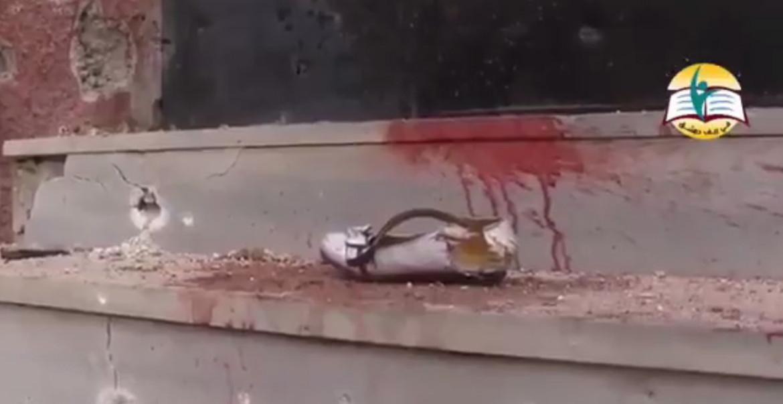 Сирия, Восточная Гута: российские бомбы, ковровые бомбардировки Асада, мертвые дети.. будни Сирии